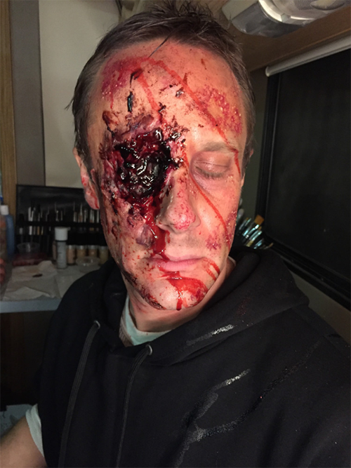 "A man with a gun wound on his eye from ""Previous Man"""